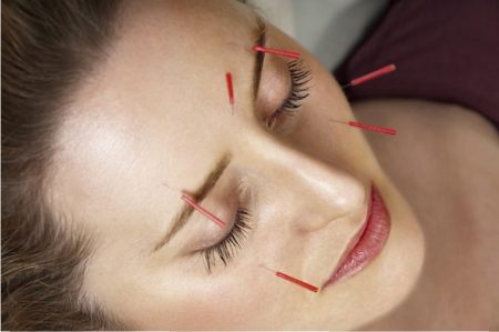Dry needling during pregnancy for maxillofacial pain